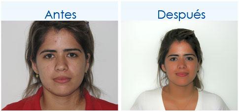 CirugiaDeNariz-11