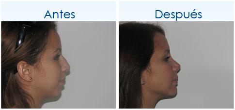 CirugiaDeNariz-14