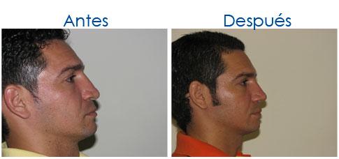 CirugiaDeNariz-20