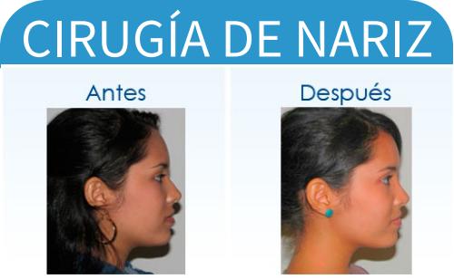 cirugíaDeNariz_1