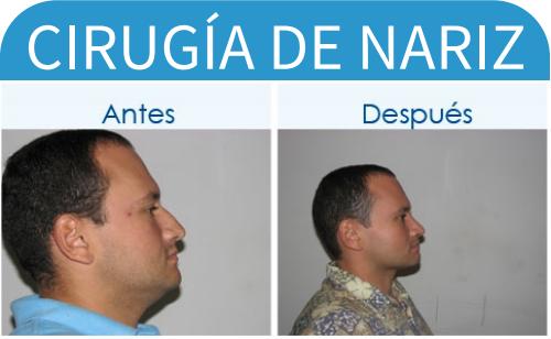 cirugíaDeNariz_10