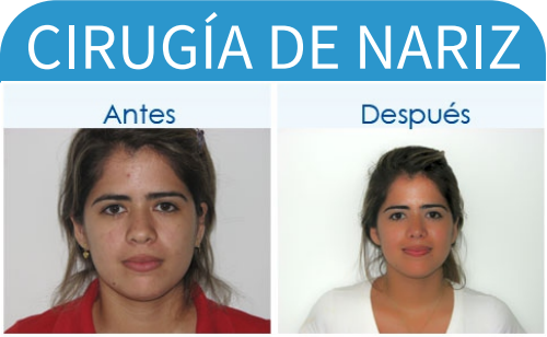 cirugíaDeNariz_12