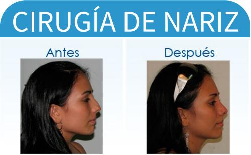 cirugíaDeNariz_13