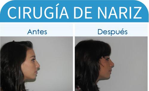 cirugíaDeNariz_14