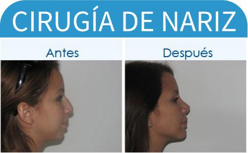 cirugíaDeNariz_15