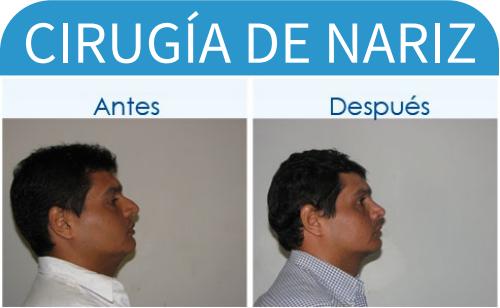 cirugíaDeNariz_16