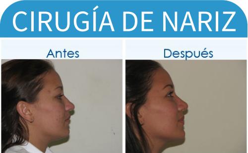 cirugíaDeNariz_17