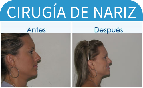 cirugíaDeNariz_18