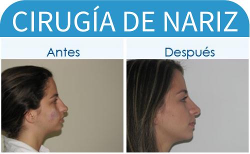 cirugíaDeNariz_19