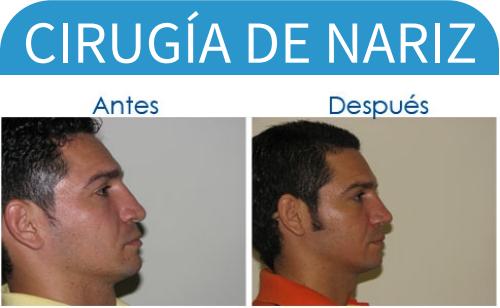 cirugíaDeNariz_20