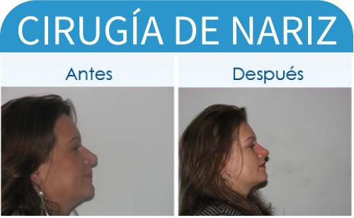 cirugíaDeNariz_21