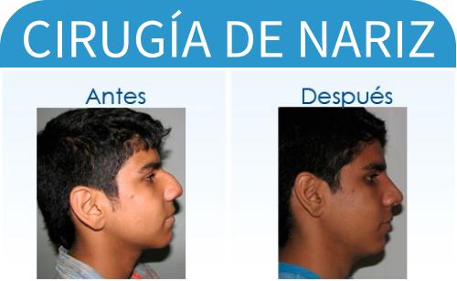 cirugíaDeNariz_3