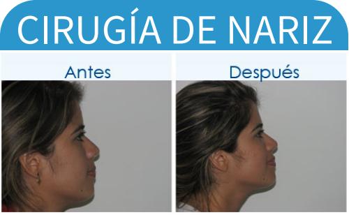cirugíaDeNariz_4