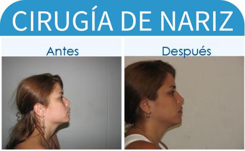 cirugíaDeNariz_5
