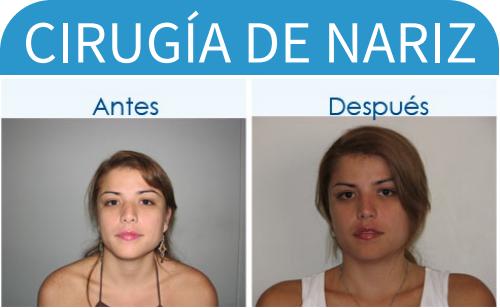cirugíaDeNariz_6
