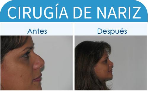 cirugíaDeNariz_7