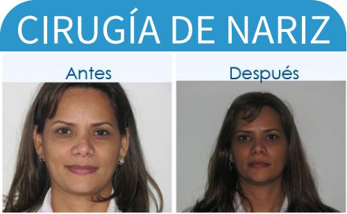 cirugíaDeNariz_8