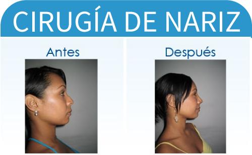 cirugíaDeNariz_9