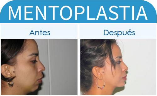 mentonPlastia_1