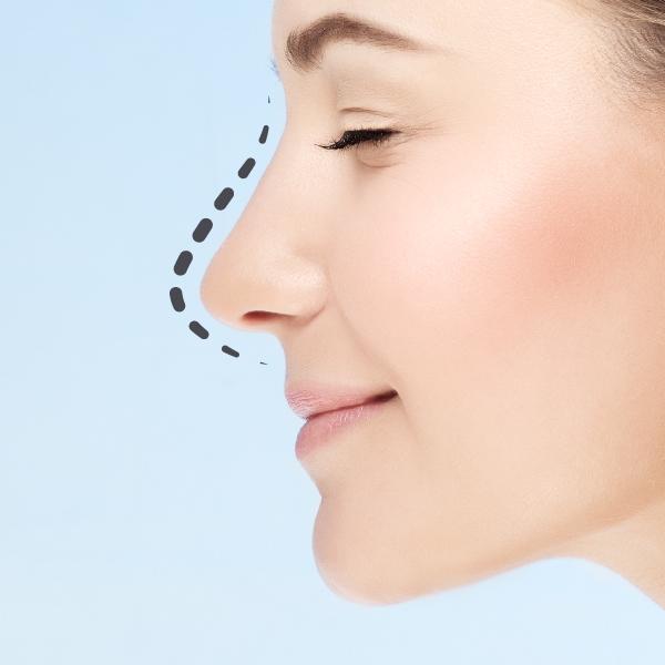 Simulador Cirugia plastcia Facial